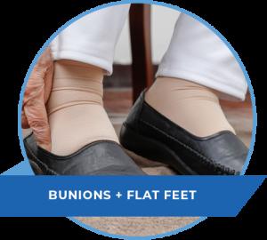 bunions-flat-feet-nj