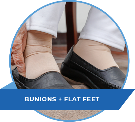 bunions-flat-feet-nj