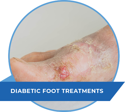diabetic-foot-treatments