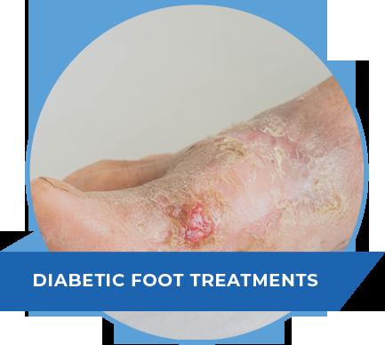 diabetic-foot-treatments