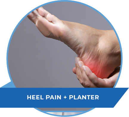 heel-pain-plantar-doctor-nj