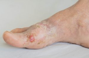 diabetes-foot-treatment
